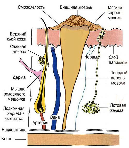 Какой врач удаляет стержневые мозоли