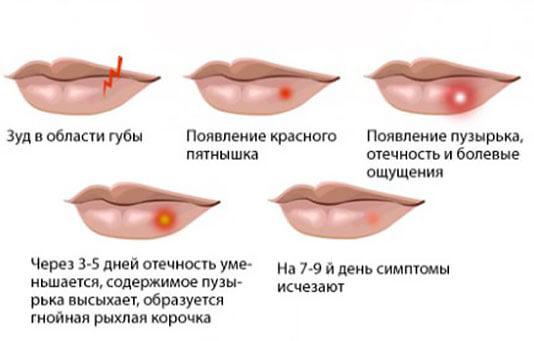Как лечить герпес на губах быстро в домашних